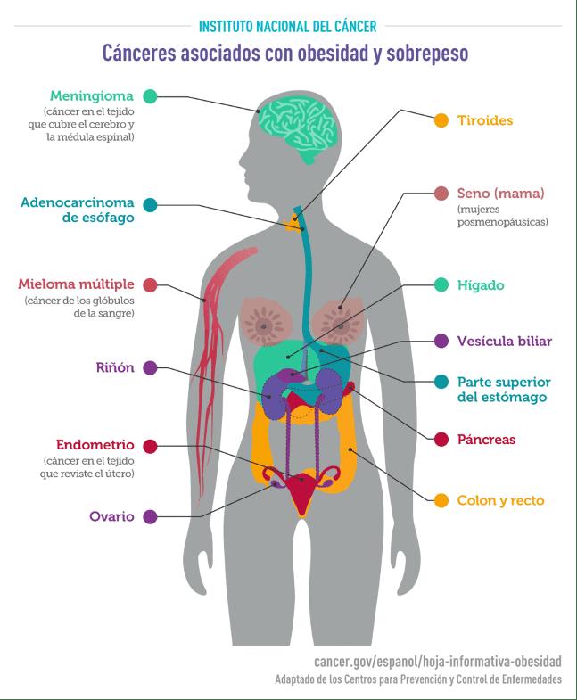 canceres asociados con obesidad y sobrepeso