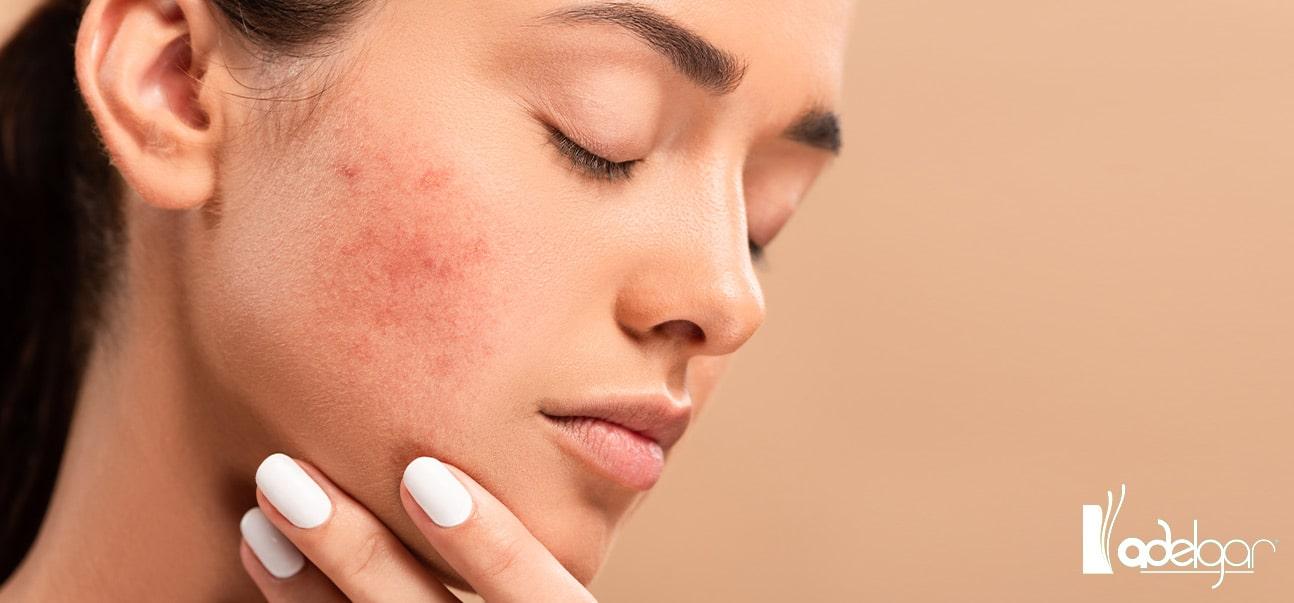 ¿Quieres acabar con las cicatrices y rejuvenecer tu piel? Dermapen es tu solución. Te contamos qué es y qué beneficios tiene para tu piel.